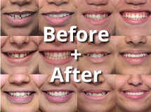 Before and after braces gallery