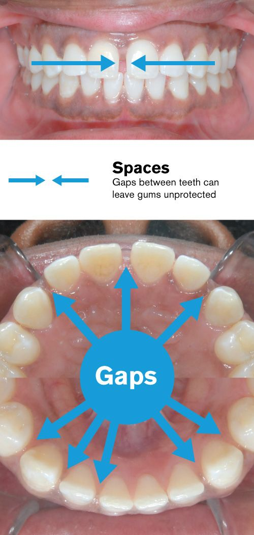 Spaces between teeth before braces