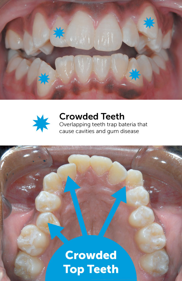 Crowded top teeth before braces