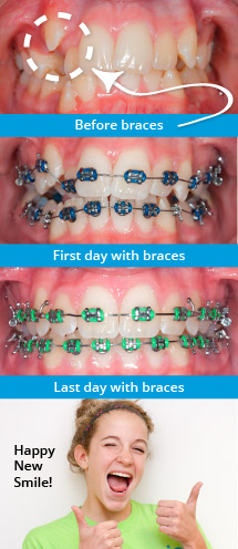Before and After Braces at Smile Logic Orthodontics