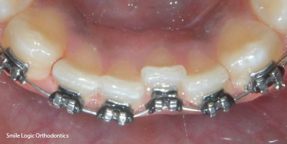 Straightening of crooked teeth during braces