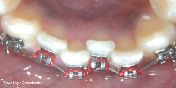 Braces used to fix crooked bottom teeth