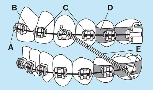 Parts of braces at Smile Logic Orthodontics