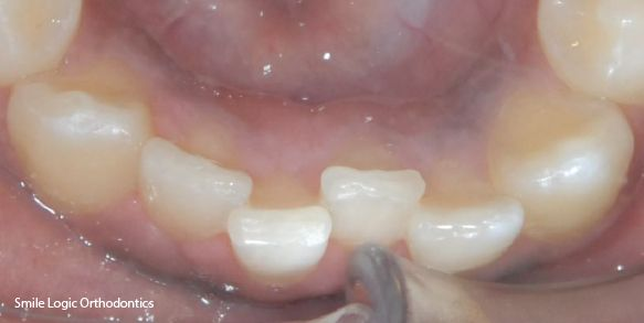 Before and after braces fix crooked bottom teeth
