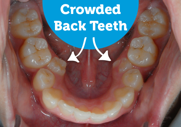 Before and after braces fix crowding back teeth