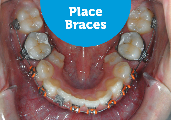 How to fix crowded back teeth with braces