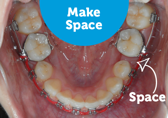 During braces make space for crooked teeth.