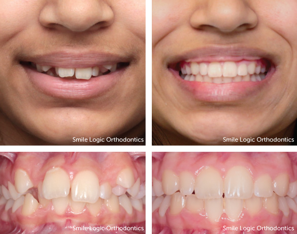 Deep bite before and after braces