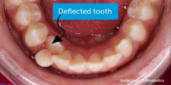 Deflected lower tooth