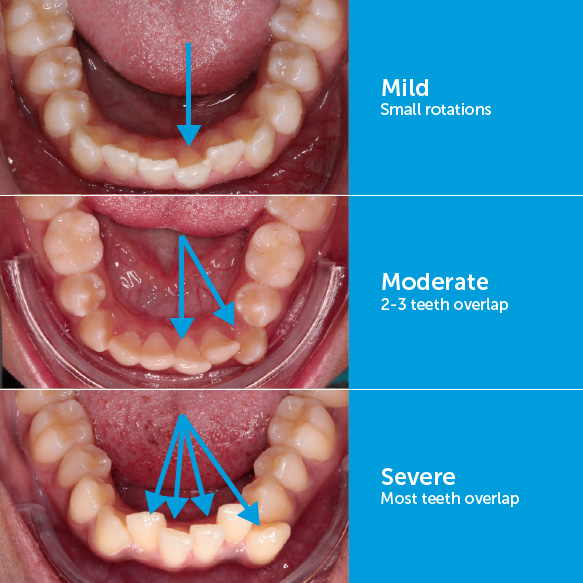 Mild crowding, moderate crowding, and severe crowding of the bottom front teeth.