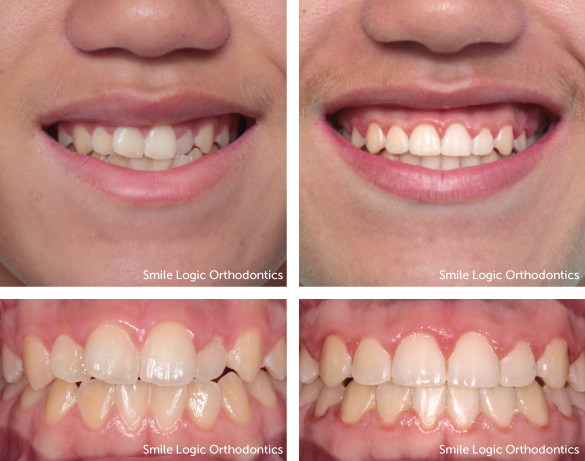 Mild crowding before and after braces