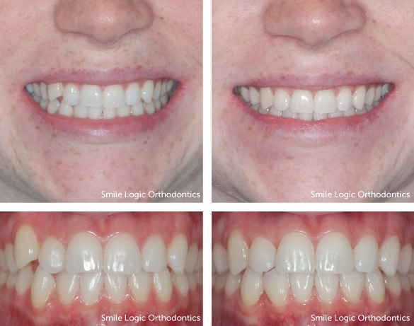 Mild crowding before and after clear aligners