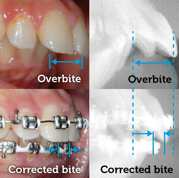 Overbite before braces
