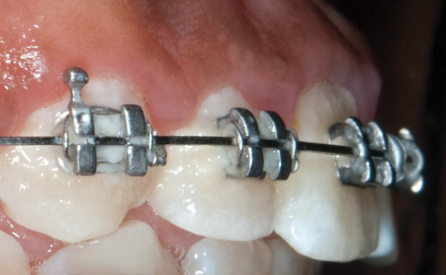 Plaque around braces