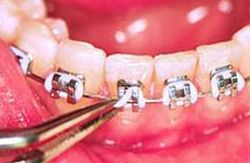 Replace braces colors