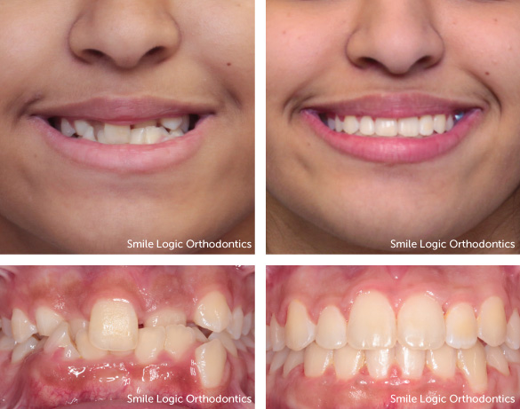 Severe crowding before and after braces and expander