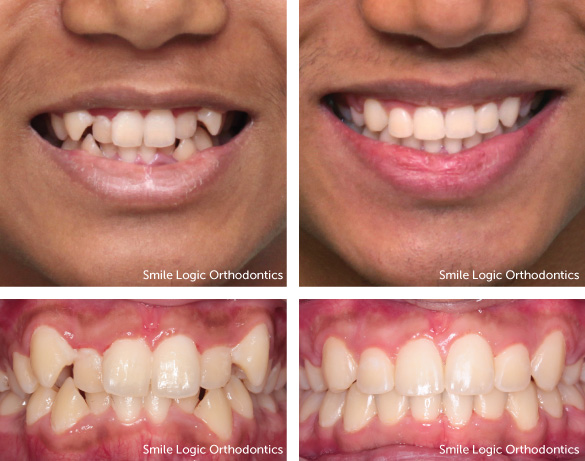 Severe crowding before and after braces