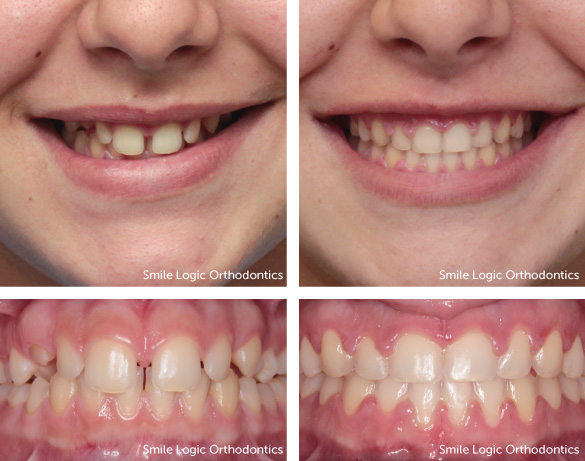 Spacing before and after braces