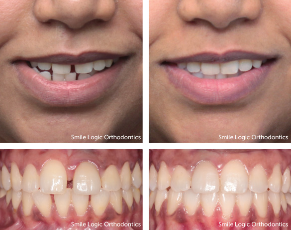 Spacing before and after Invisalign