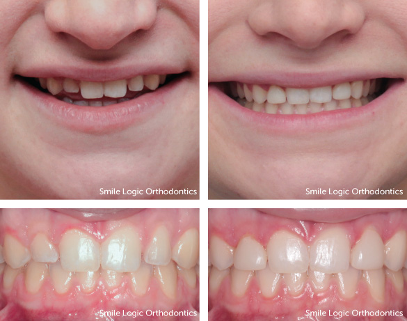 Spacing before and after veneers